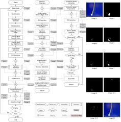 High Speed Vision-Based Algorithm for Centreline Extraction of Catheters